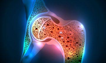 osteoporiso